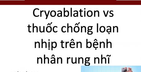 Cryoablation-thuoc-chong-loan-nhip-rung-nhi